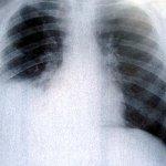 International Day of Radiology